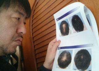 再生医療を使った発毛!